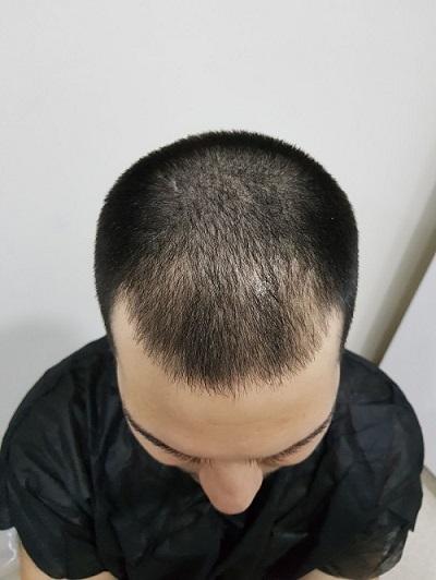 زراعة الشعر بدون حلاقة قبل العملية.JPG