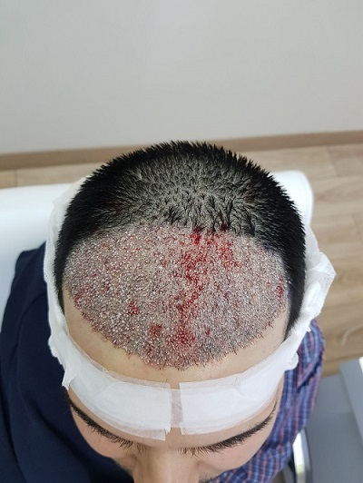 زراعة الشعر بدون حلاقة بعد العملية.JPG