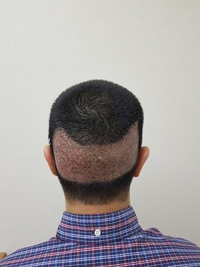 زراعة الشعر بدون حلاقة بعد الغسيل رابع يوم (2).JPG