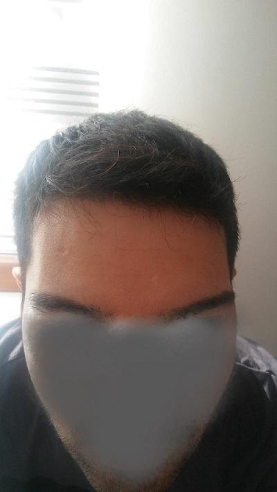 زراعة الشعر بدون حلاقة نتيجة بعد 5 شهور (3).jpg