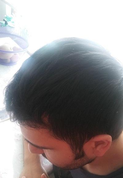 زراعة الشعر بدون حلاقة نتيجة بعد 5 شهور.JPG