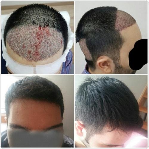 زراعة الشعر بدون حلاقة قبل وبعد.jpg