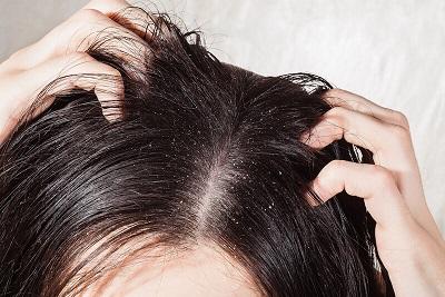 غسل الشعر - الشعر الجاف و القشرة.jpg