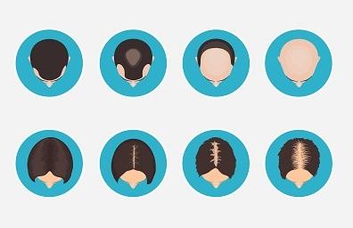 تساقط الشعر عند الرجال و النساء.jpg