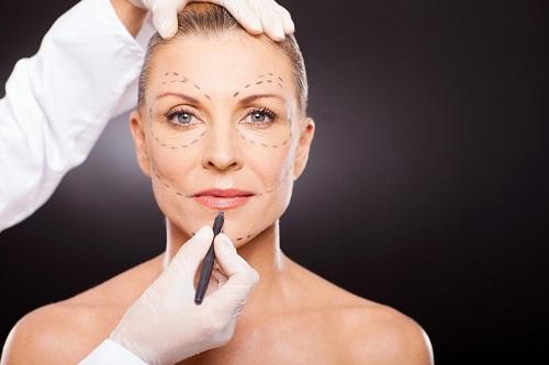 عمليات التجميل - شد الوجه.jpg