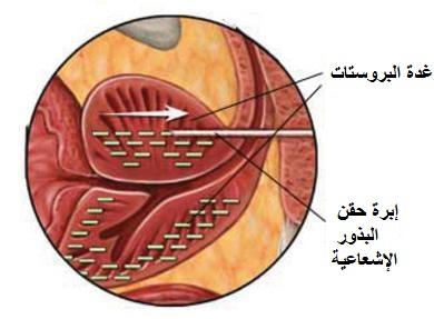 arabshealth- العلاج- بالاشعاع- لعلاج- سرطان- البروستات.jpg