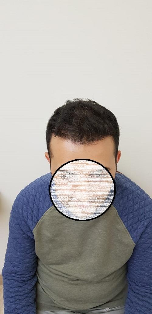 زراعة الشعر في اسطنبول (10).jpg
