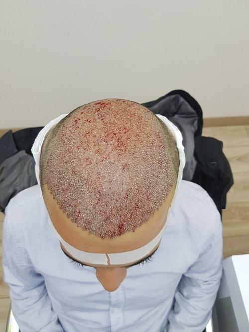 زراعة الشعر في اسطنبول (11).jpg