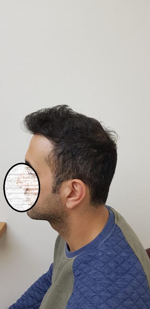 زراعة الشعر في اسطنبول (12).jpg