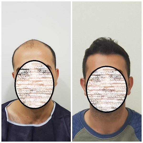 زراعة الشعر في اسطنبول (6).jpg