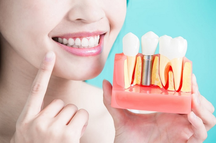 عملية زراعة الأسنان.jpg
