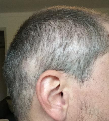 صدمة الشعر بعد زراعة الشعر.jpg