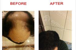 كيف تتم عملية زراعة الشعر | خطوات ومراحل